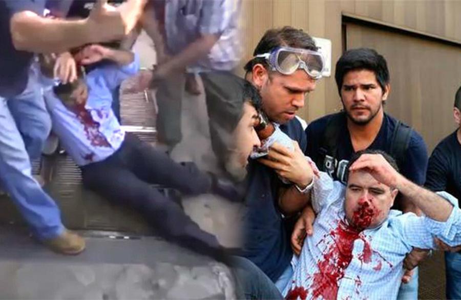 De un disparo en la cara hombre el quita la vida a su